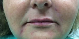 Lip Fillers Before and After Pictures Virginia Beach, VA