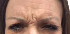 Botox® Before and After Pictures Virginia Beach, VA