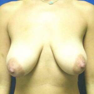 Breast Lift Before and After Pictures Virginia Beach, VA