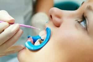 Dentistry Buford & Suwanee