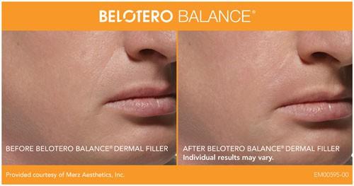 Belotero Balance Patient San Diego