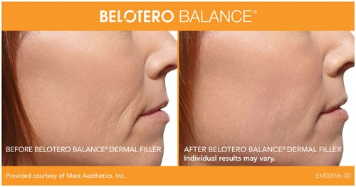 Belotero Balance Before After Photos San Diego, CA