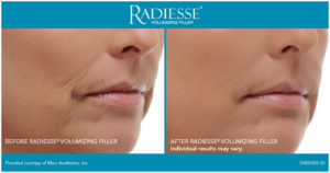 Radiesse Injection Before After Chula Vista