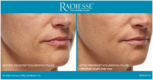 Radiesse Injection Before After San diego, CA