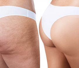 QWO Before & After Photos of the Buttocks