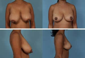 Breast Reduction Amman