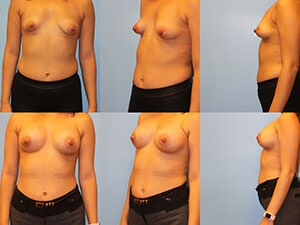 Before & after breast correction Westchester County