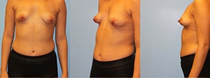 Tubular breast correction New York City
