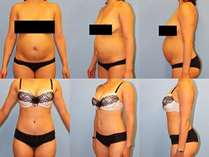 Tummy tuck yonkers new york