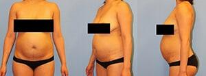 Abdominoplasty Westchester County