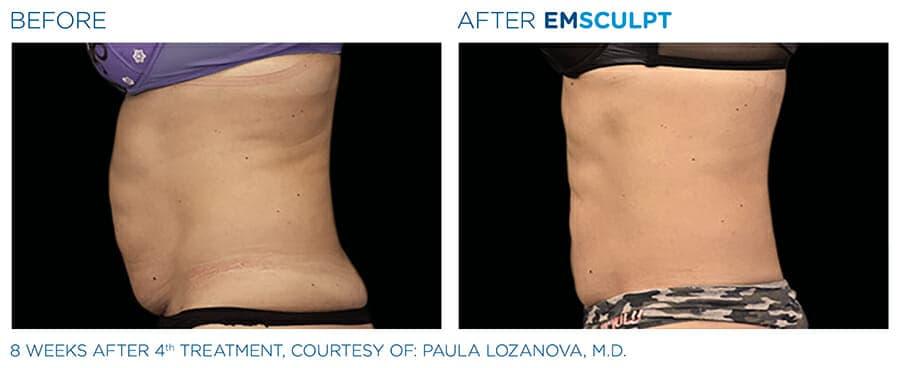 Before & after Emsculpt patient