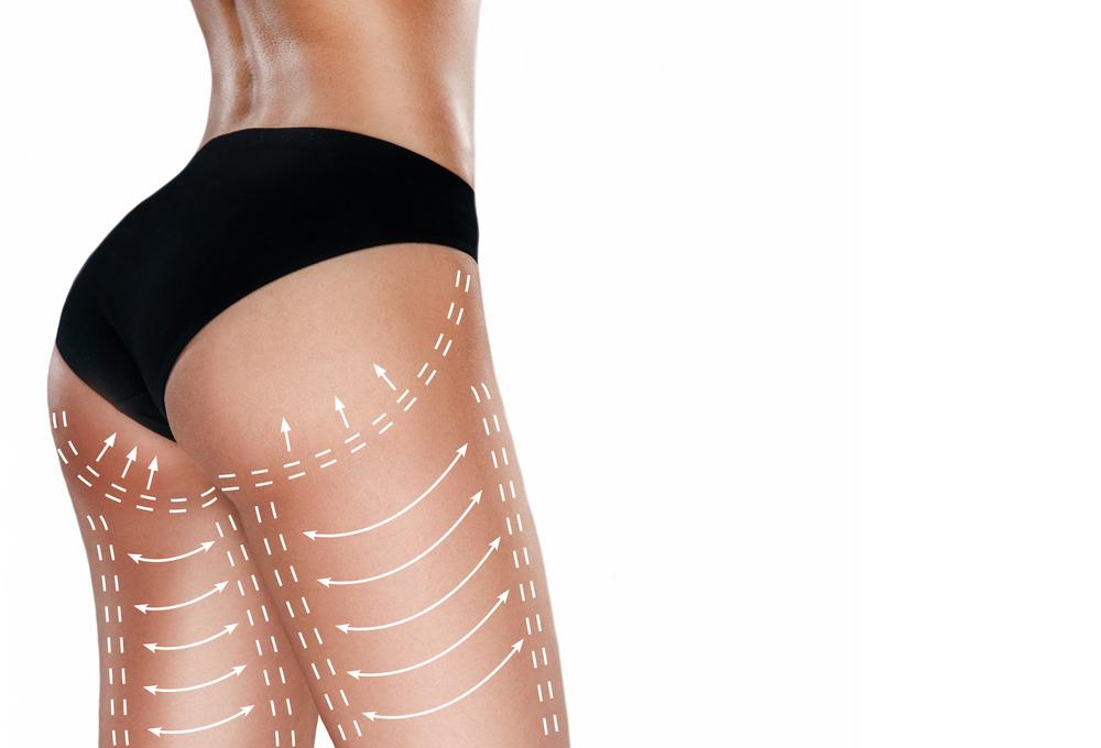 Brazilian Butt Lift Benefits