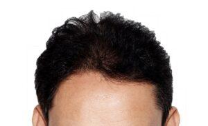 Hair restoration in New York City