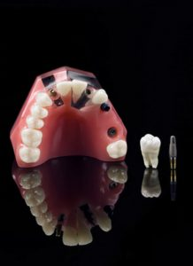 FAQs About Dental Implants