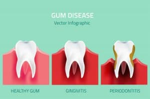 Health problems linked to gum disease