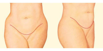 Abdominoplasty results