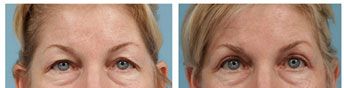 Eyelid lift: before and after