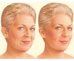 Limited Incision Facelift