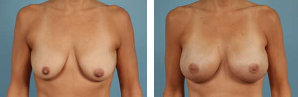 Tissue Expander Breast Reconstruction Before and After Chicago