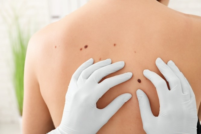 Skin cancer reconstruction in Chicago