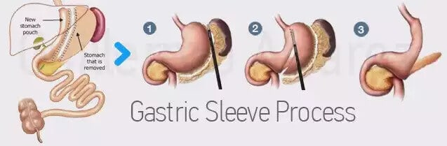 Gastric sleeve process