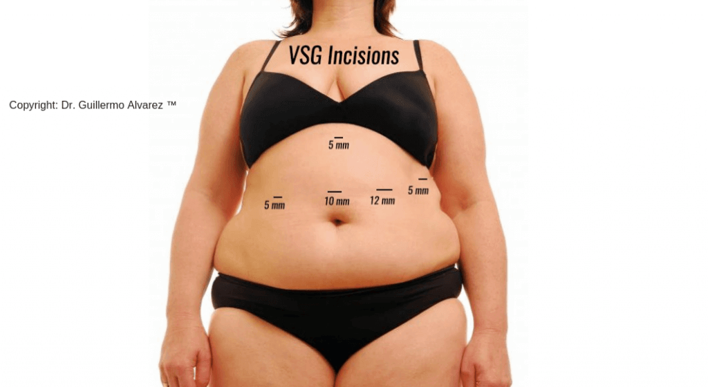 Vertical sleeve gastrectomy incisions
