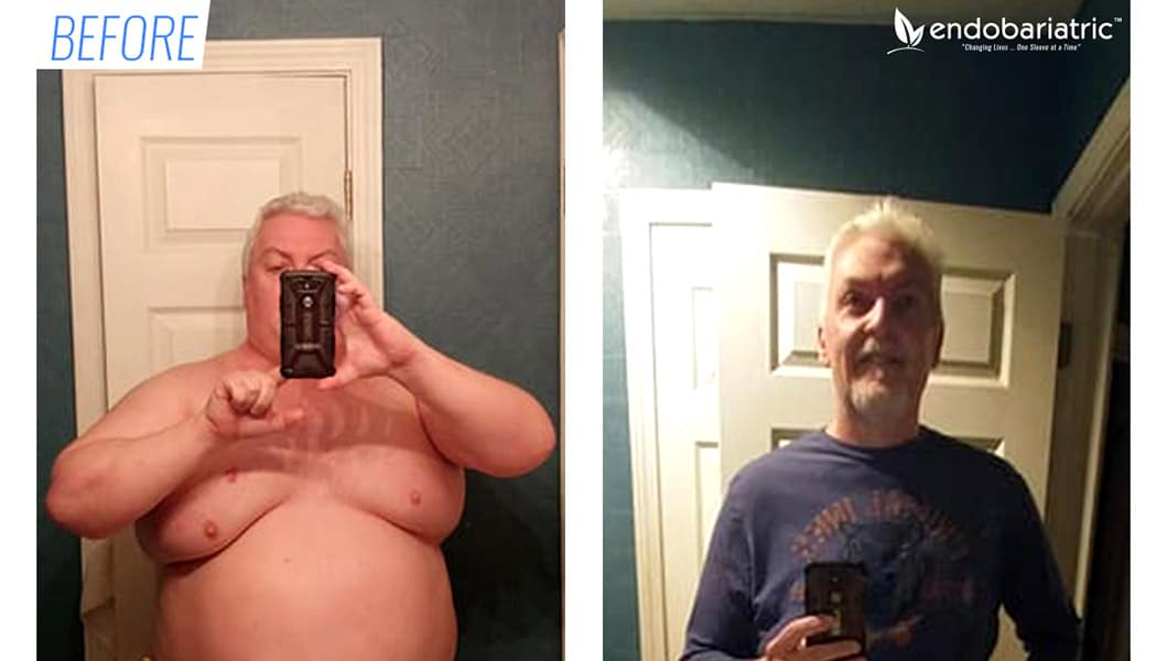 Before & after sleeve surgery