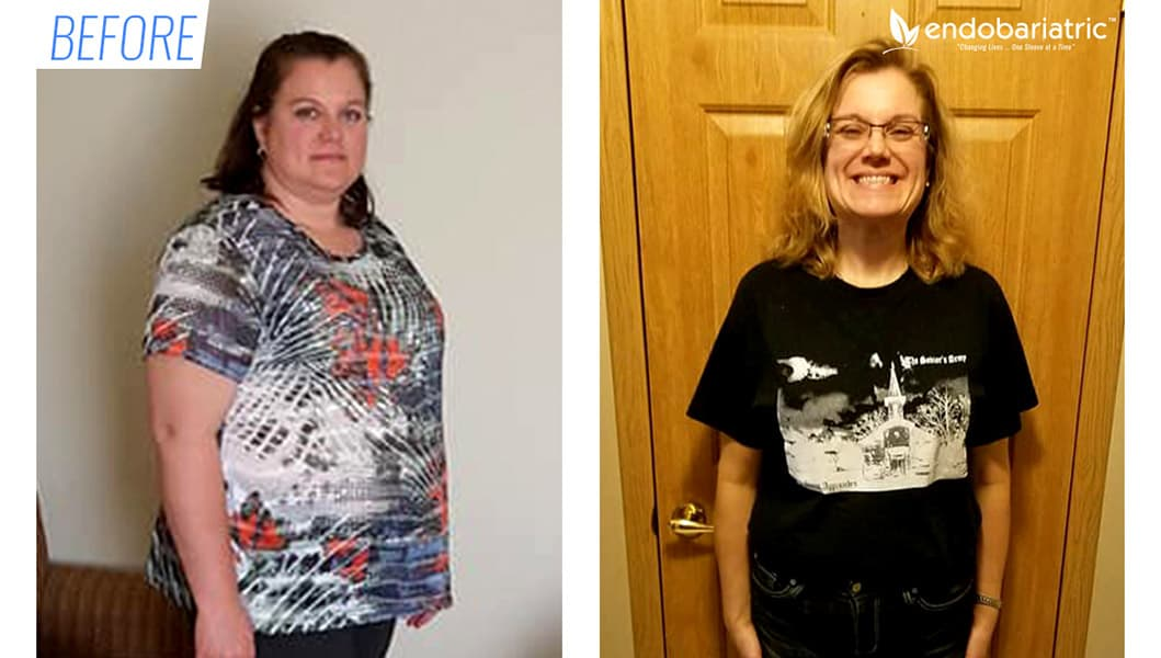 Before & after gastric sleeve surgery