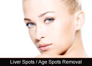 Laser Liver & Age Spots Removal Novi & Troy Michigan