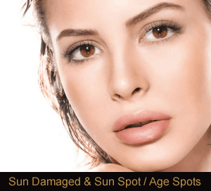 Sun Spot/ Damage Removal Novi & Troy Michigan