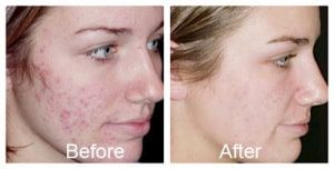 Acne Treatment Patient Novi & Troy Michigan