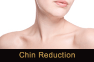 Chin Augmentation in Novi & Troy, MI