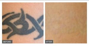 Laser Tattoo Removal Novi, MI