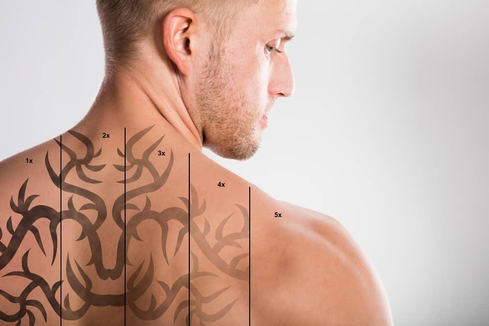 RevLite Tattoo Removal Troy, MI