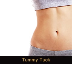 Tummy Tuck in Novi & Troy, MI