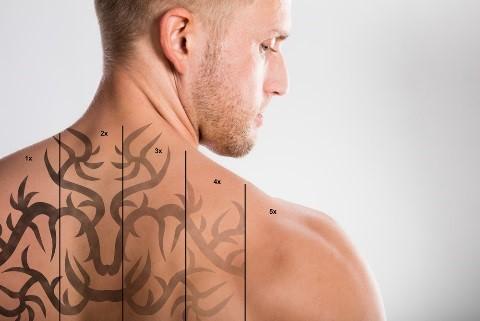 Erbium Laser Tattoo Removal Novi, MI