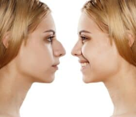Before after image of Rhinoplasty