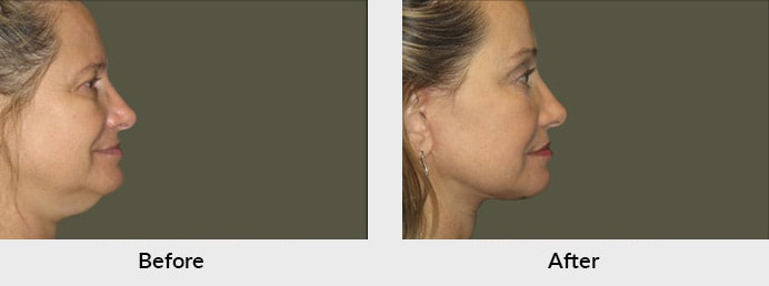 Neck & Facelift Patient in Charlotte, NC