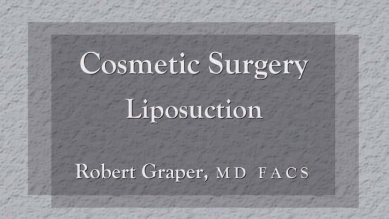 Liposuction education Seminar with Charlotte, NC Plastic Surgeon