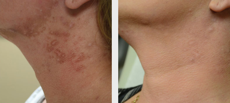 Laser Treatment Patient in Charlotte, NC