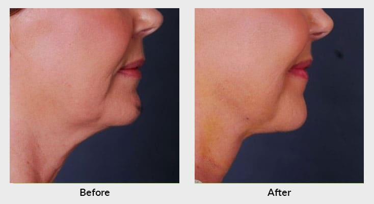 Non-surgical skin tightening in Charlotte, NC