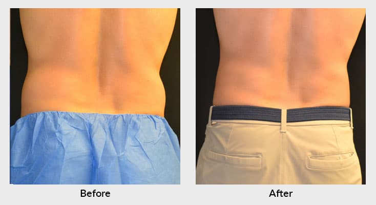 CoolSculpting Lower Body Treatment in Charlotte NC