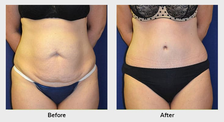 Body Contouring After Weight Loss Patients in Charlotte NC