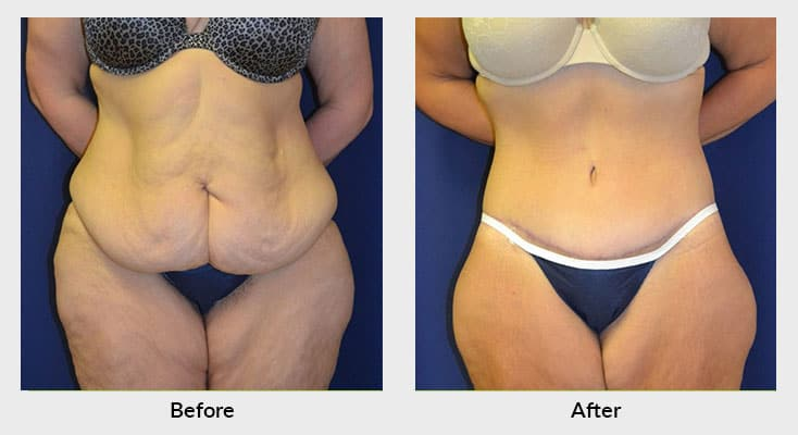 Body Contouring After Weight Loss in Charlotte NC
