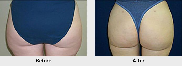 Liposuction in Charlotte, NC