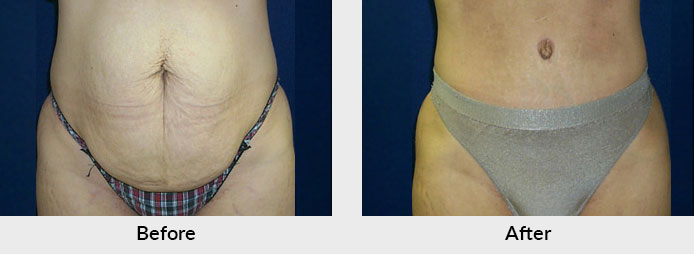 Abdominoplasty Patient in Charlotte, NC