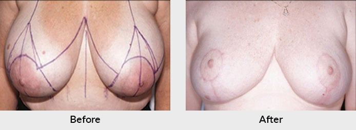 Breast Reduction Patient in Charlotte, NC
