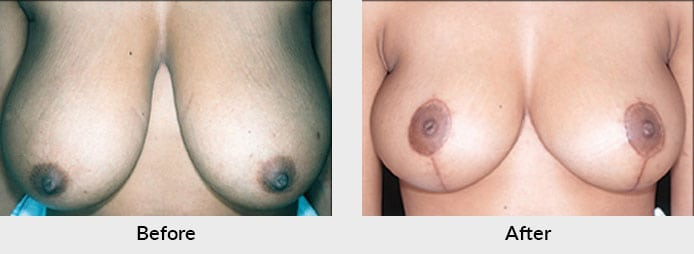 Breast Reduction Before After Photo in Charlotte, NC