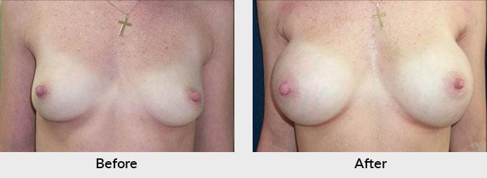 Breast Implants Charlotte, NC