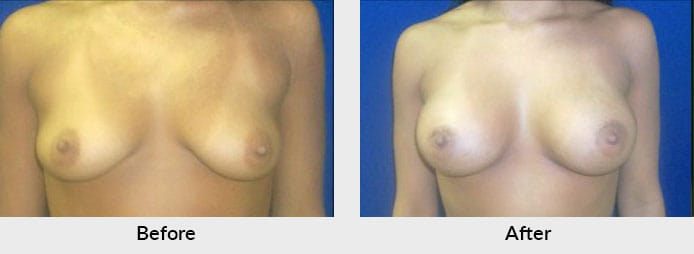 Breast Implant Patient Before After Gallery Charlotte, NC